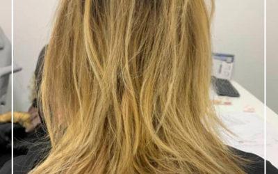El trasplante de cabello en mujeres y la pérdida de cabello