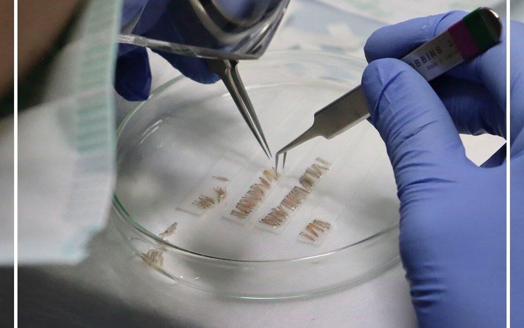 ¿Qué es el microinjerto de unidades foliculares?